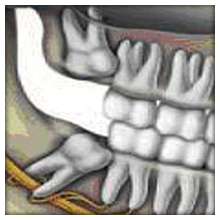 Gömülü dişlerimi ne zaman çektirmeliyim?