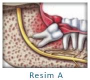 Gömülü Diş ve Enfeksiyon